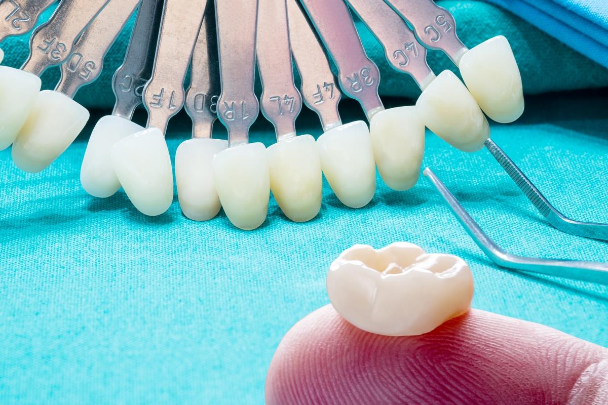 Prosthodontics or Prosthetic