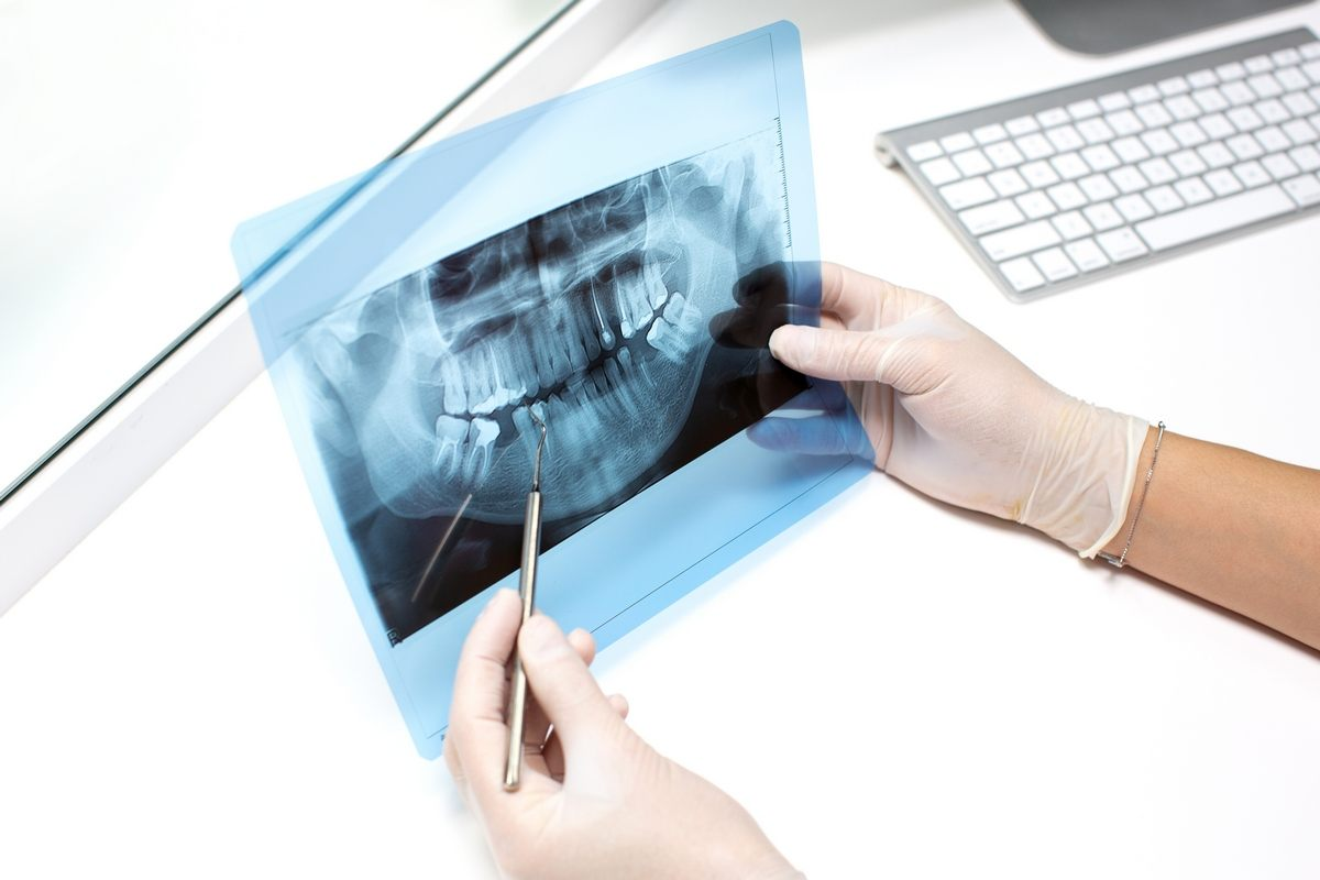 oralnakirurgija-hujse_oblike_paradontoze_drcuratis