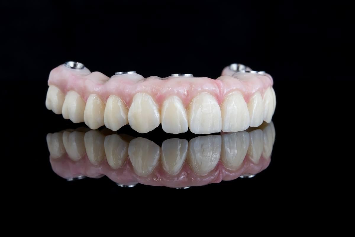 zobne-proteze_ziksna-zobna-proteza_drcuratis
