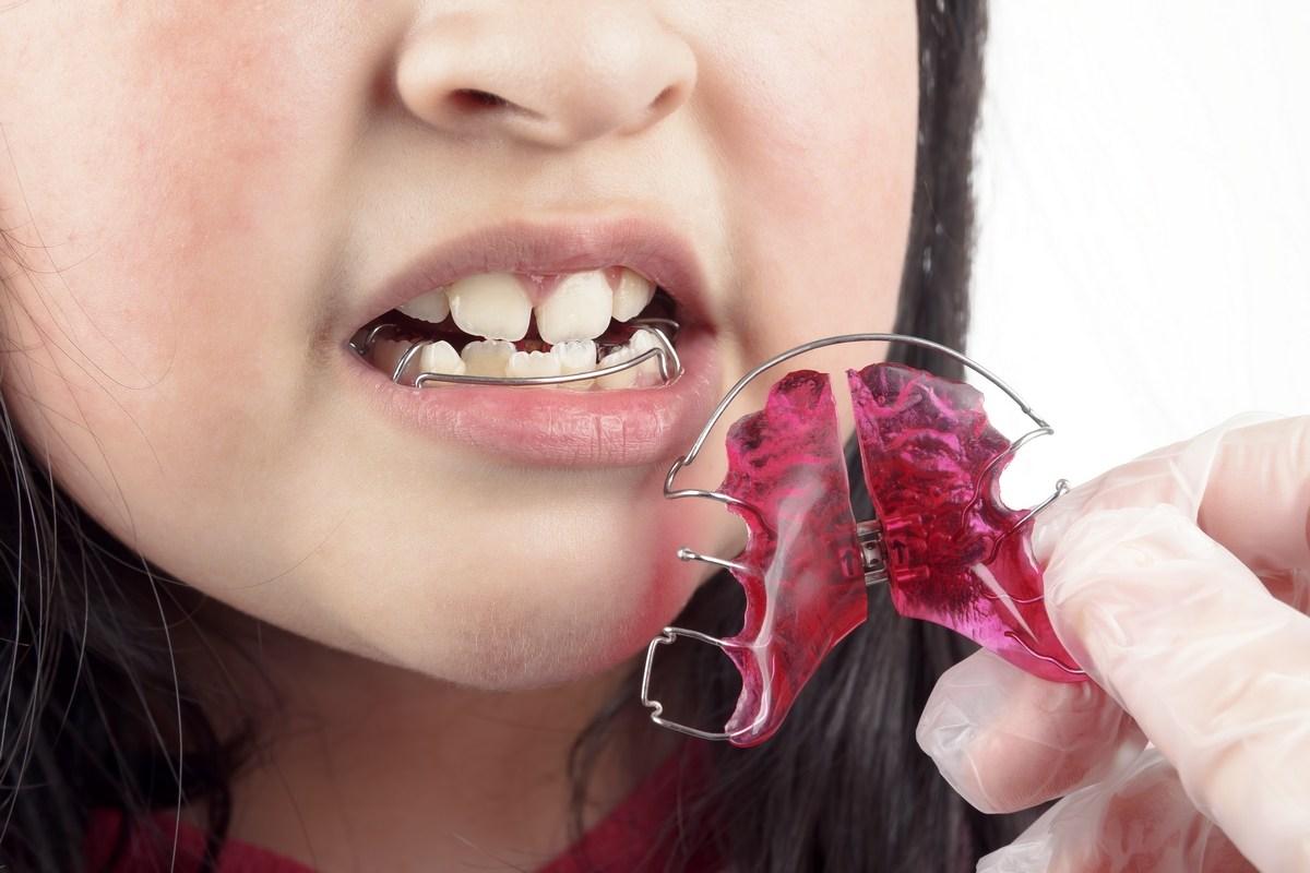 zobni-aparati-funkcionalni-zobni-aparat_drcuratis