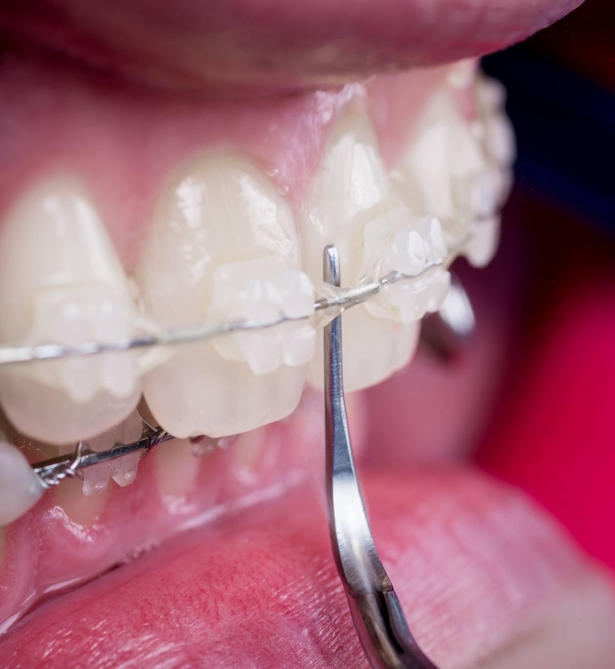 zobni-aparati_o-zobnih-aparatih_drcuratis